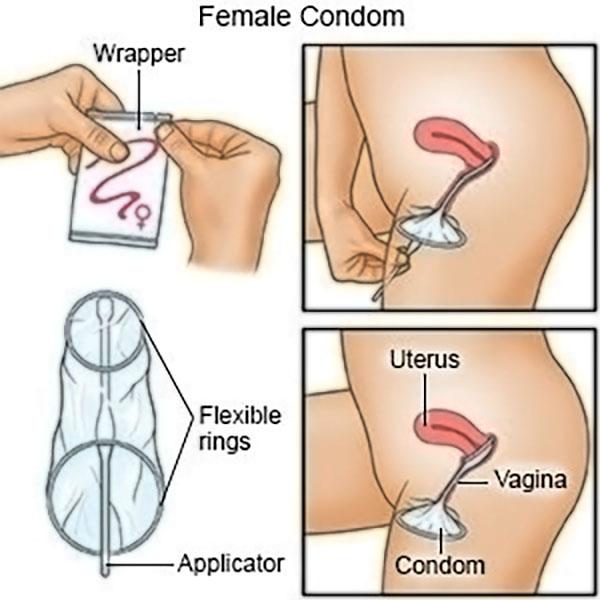 Female condom sex